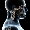 Décompression Neurovertébrale et hernie discale