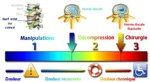 Évolution de la hernie discale