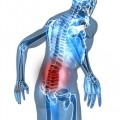 Hernie discale et symptômes